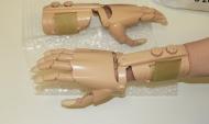 Инновационные протезы.